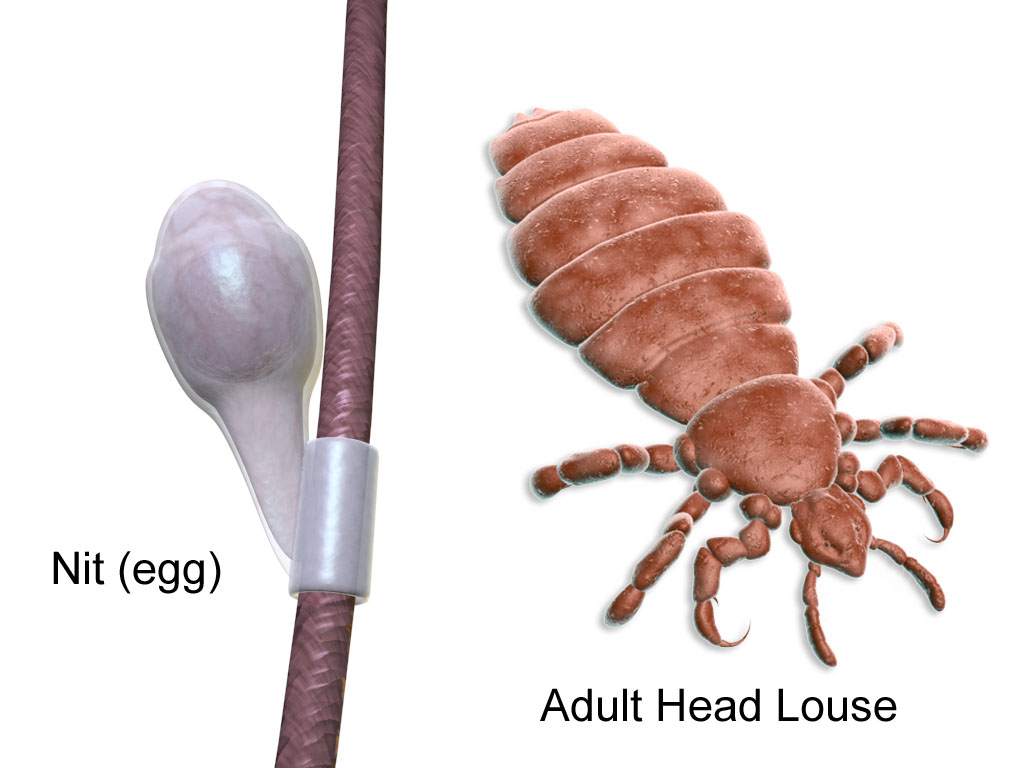 Head Lice Information